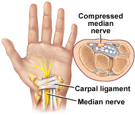 Carpal Tunnel Syndrome - Causes, Symptoms, & Treatment
