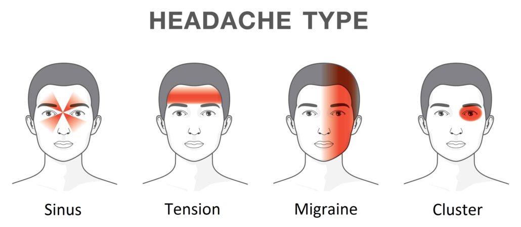 4 types of headaches
